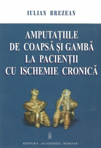 Amputatiile coapsa gamba pacientii ischemie