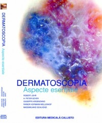 Dermatoscopia aspecte esentiale