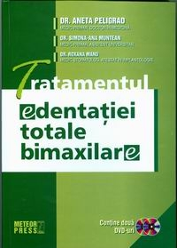 Tratamentul edentatiei totale bimaxilare